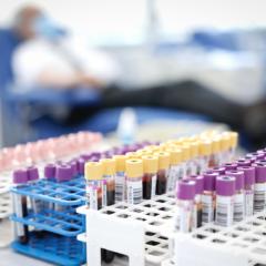 Madrid necesita que se done sangre para recuperar los niveles previos a la pandemia por COVID-19