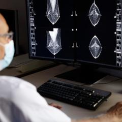 Cinco hospitales madrileños se incorporan a la detección precoz del cáncer de mama